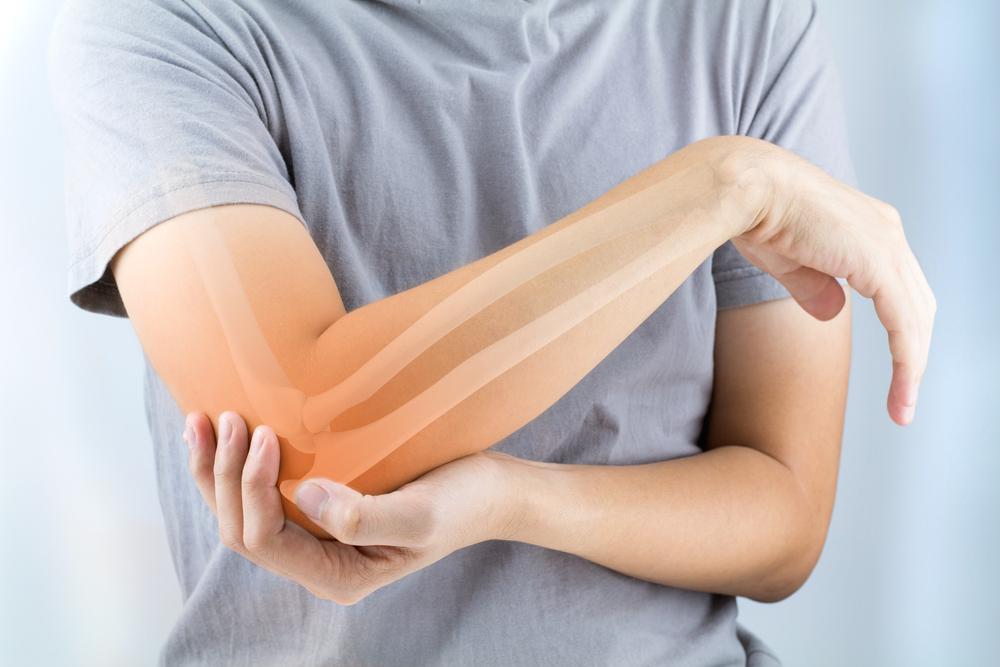Osteoporose: fique de olho
